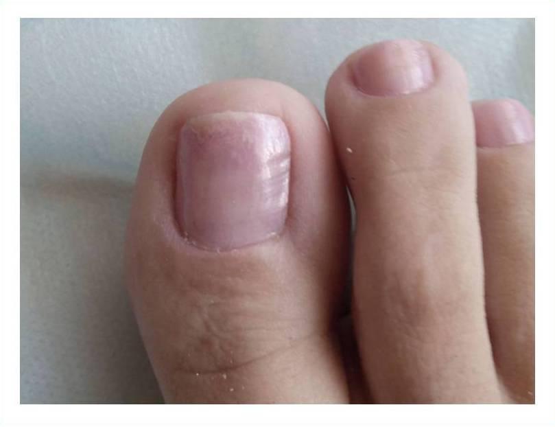 Что делать когда нарывает под ногтем